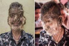 Bak serigala, wajah remaja 13 tahun ini ditumbuhi rambut tak wajar