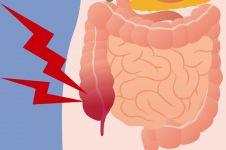 5 Kebiasaan orang Indonesia ini dapat memicu penyakit usus buntu
