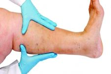 Benarkah jalan kaki membuat betis membesar? Ini penjelasannya