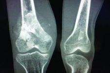 Inilah jenis, penyebab, dan gejala tumor tulang yang perlu diketahui
