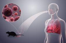 Begini cara penularan, gejala, dan pencegahan penyebaran Hantavirus
