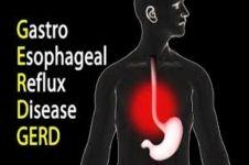 Kenali GERD atau penyakit refluks asam lambung lebih dalam