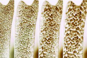 Lakukan cara ini untuk mencegah keretakan tulang akibat osteoporosis