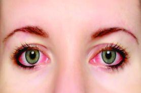 Ini 4 masalah pada mata dan cara tepat untuk mengatasinya