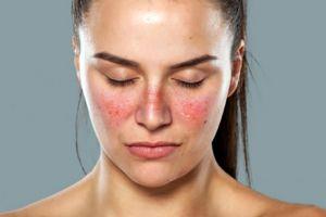 Penyakit Lupus, si seribu wajah yang sulit terdiagnosa