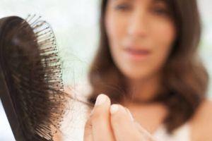 5 Cara alami dan murah mengatasi rambut rontok kamu