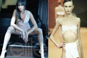 Kamu perlu tahu, ini penyebab utama orang terkena anoreksia