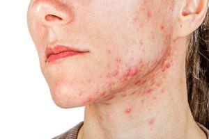 Ketahui 5 penyebab munculnya jerawat kistik di wajah
