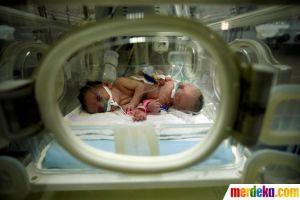 Potret haru bayi kembar siam asal Gaza berhasil dipisahkan