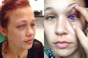 Niat memperindah mata, wanita ini malah hampir kehilangan penglihatan