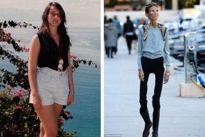8 Potret memprihatinkan mantan model yang terobsesi diet