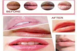 Bibirmu hitam? Yuk bikin kemerahan pakai 4 cara ampuh ini