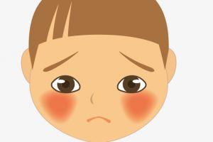 Begini 8 tips merawat kulit wajah yang berjerawat