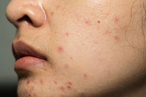 5 Bahan alami untuk atasi jerawat di wajah, mudah ditemukan