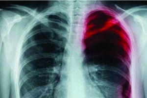 Ini penyebab paru-paru kolaps yang harus diwaspadai