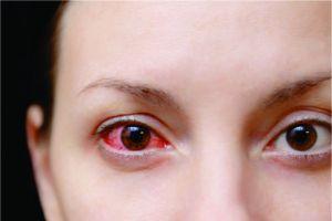 Gunakan 4 cara ini untuk menghindari penularan sakit mata