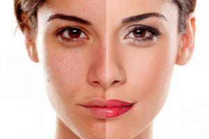 5 Bahan alami untuk perawatan wajah, mudah dan murah