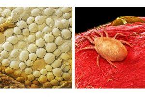 15 Foto makanan ini diambil dengan bantuan mikroskop, masih mau makan?