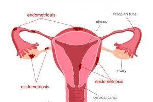 Waspadai endometriosis, tumor dinding rahim yang kerap dikira wasir