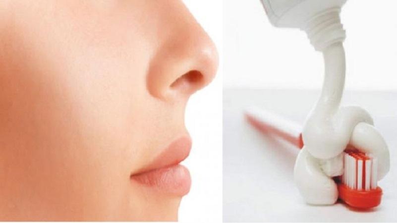 Menghilangkan Jerawat Dengan Pasta Gigi Dan Garam