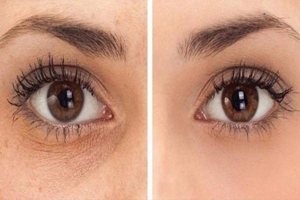 Perempuan Wajib Tahu Ini 5 Cara Alami Merawat Kulit Wajah Dan Ra