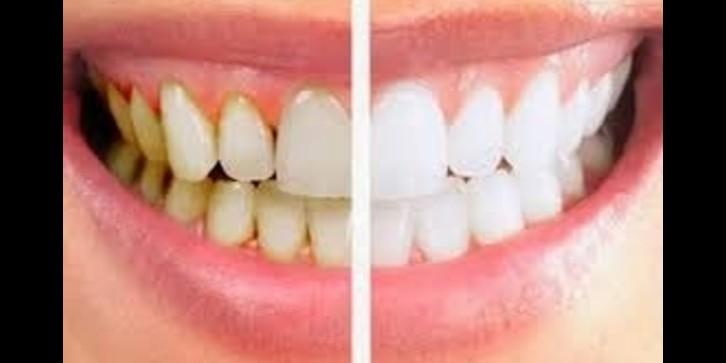 8 Cara menghilangkan karang gigi tanpa harus pergi ke dokter gigi