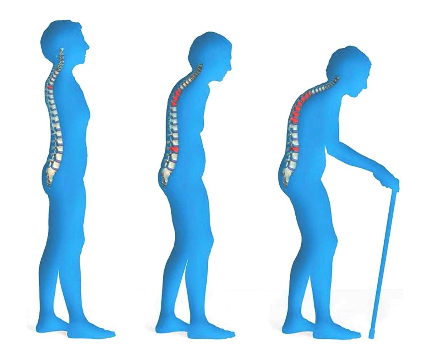 3 Tips terhindar dari Osteoporosis, penyakit diam-diam menghanyutkan