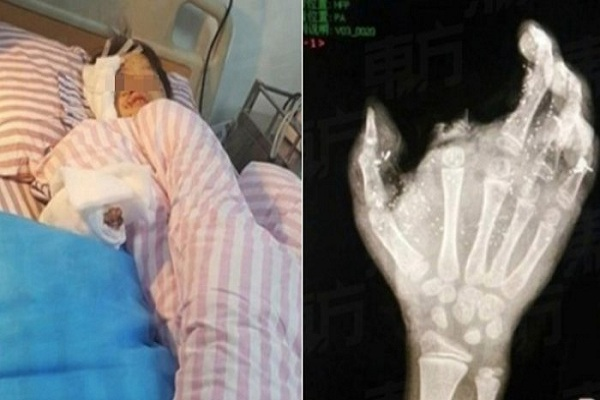 Ponsel meledak, bocah 12 tahun kehilangan mata dan jarinya