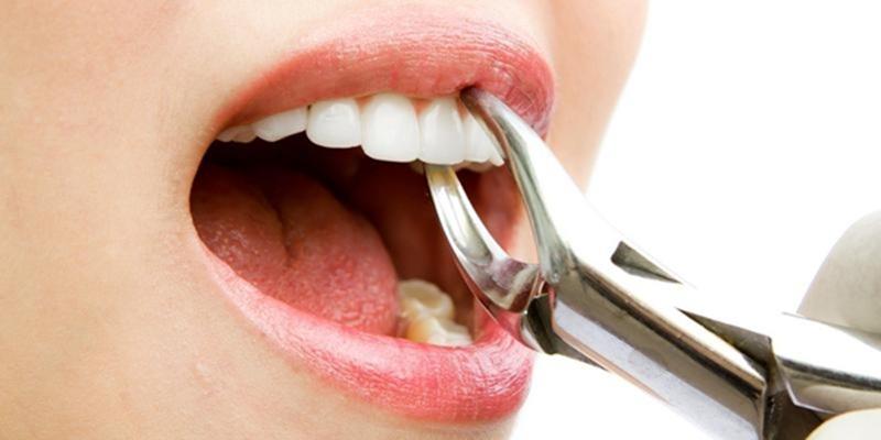 5 Larangan setelah pencabutan gigi, biar nggak tambah sakit