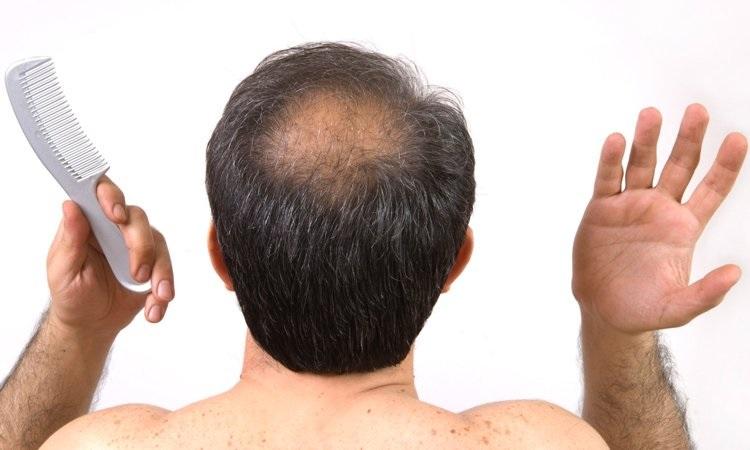 Inilah 4 cara ampuh atasi kebotakan rambut, bisa dicoba nih