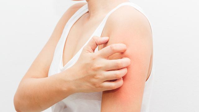 4 Penyakit kulit ini umum terjadi akibat infeksi bakteri