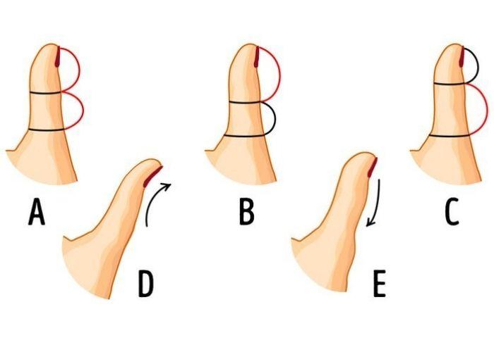 5 Cara melihat kepribadian seseorang dari bentuk ibu jarinya