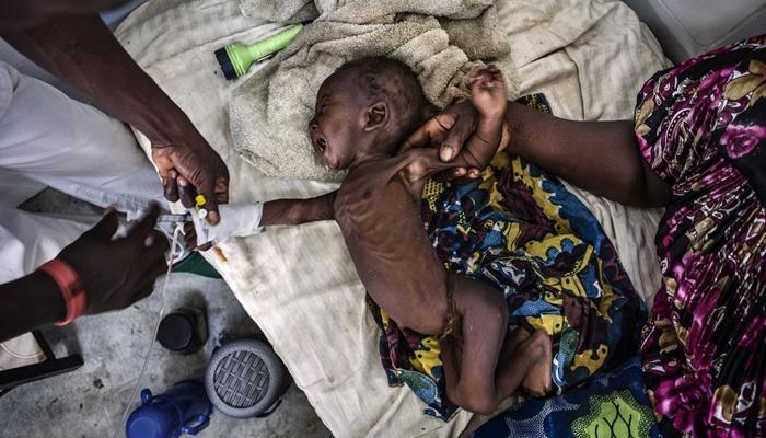 Kematian anak di 5 negara ini tinggi, tak cuma karena kurang gizi