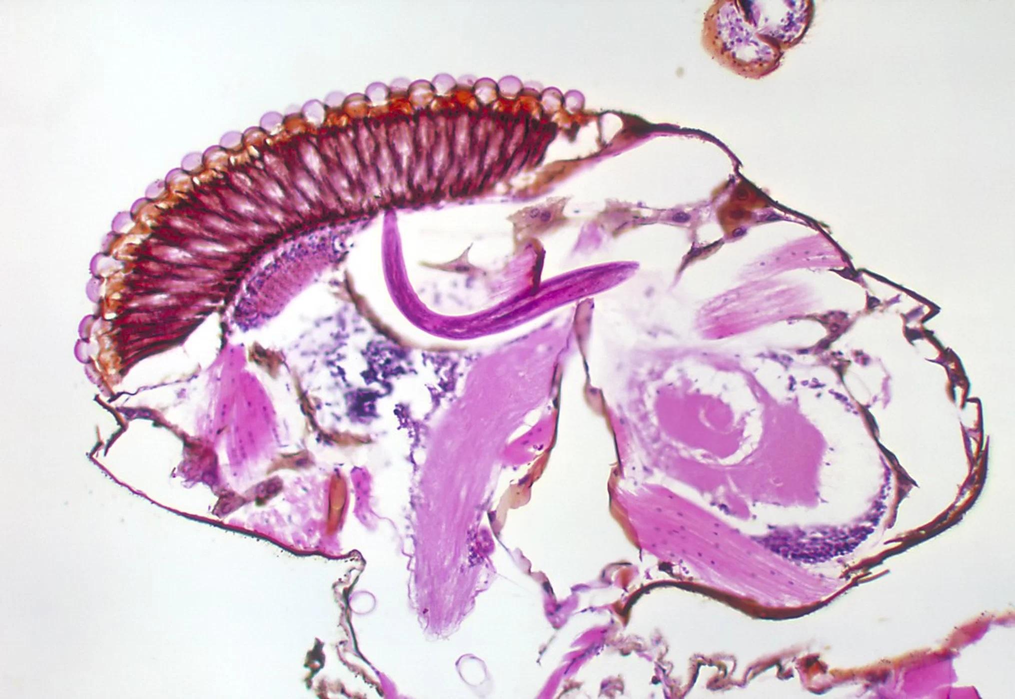 Ngeri, begini bentuk Parasit jika dilihat di bawah mikroskop