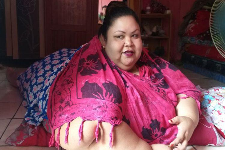 Obesitas, wanita asal Palangkaraya ini punya berat lebih dari 300 kg