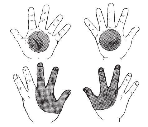 Diagram lokasi partikel GSR pada tangan