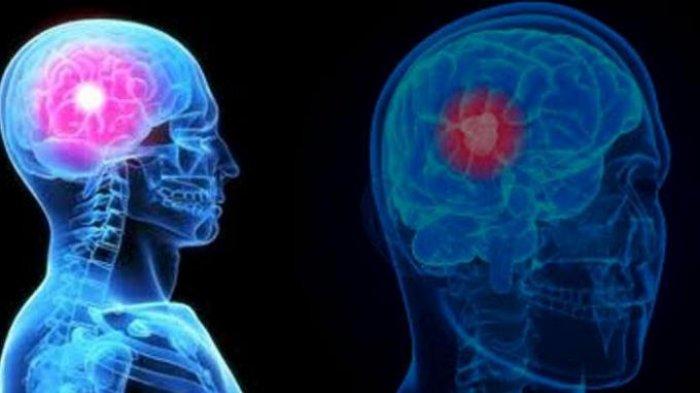 Ingin punya otak yang cedas, coba lakukan 6 kebiasaan ini