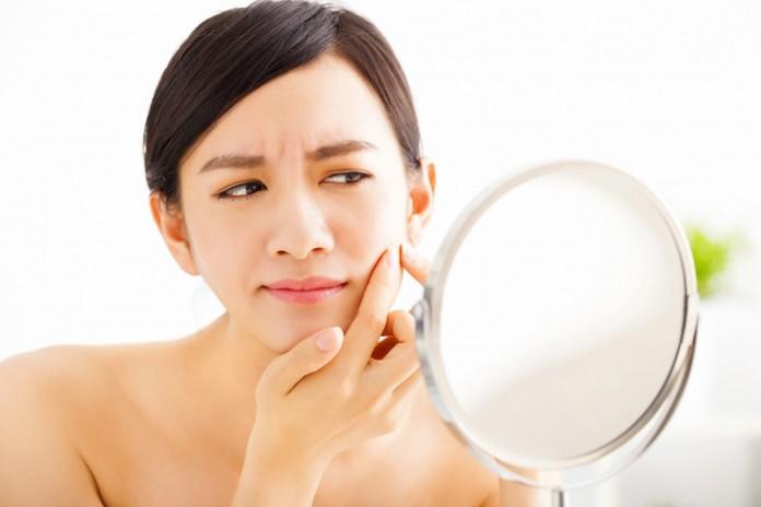 5 Tindakan sepele ini bisa jadi penyebab timbulnya jerawat