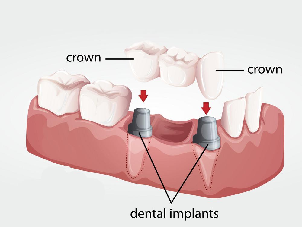 Ini solusi untuk mengatasi gigi ompong di usia muda