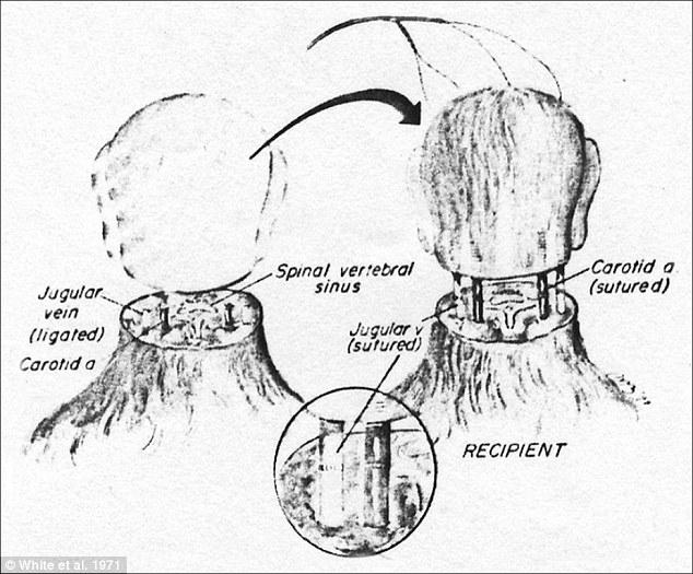 Orang ini berencana transplantasi kepala utuh pertama di dunia!