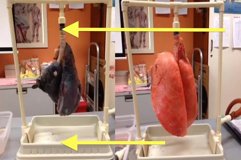 VIDEO: Masih berani merokok setelah melihat paru-paru perokok ini?