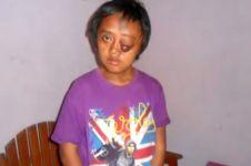VIDEO: Mengharukan, perjuangan kisah pemuda alami tumor di kaki & mata