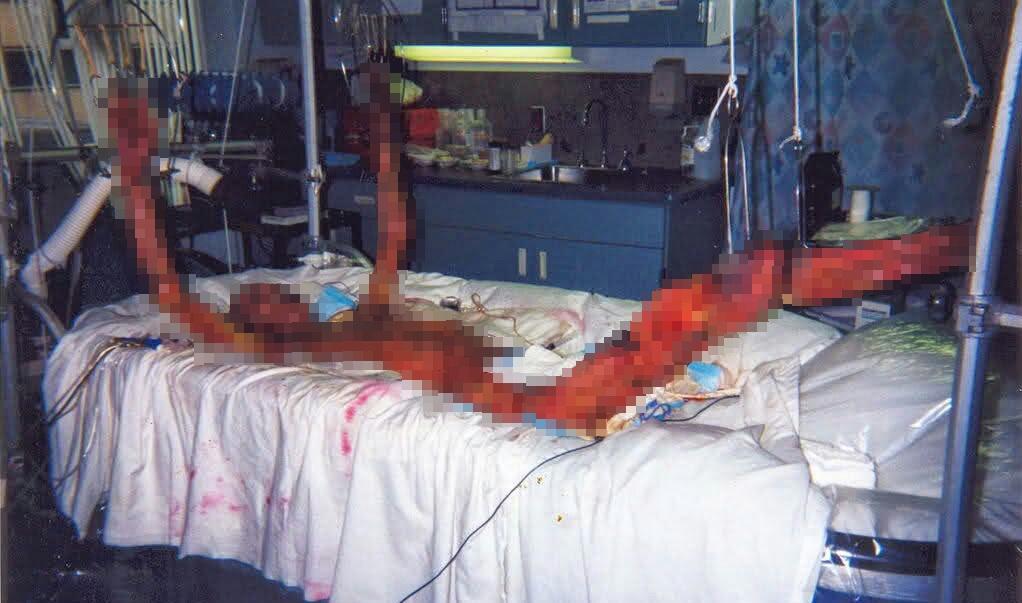 Gambar seramnya efek radiasi pada tubuh manusia