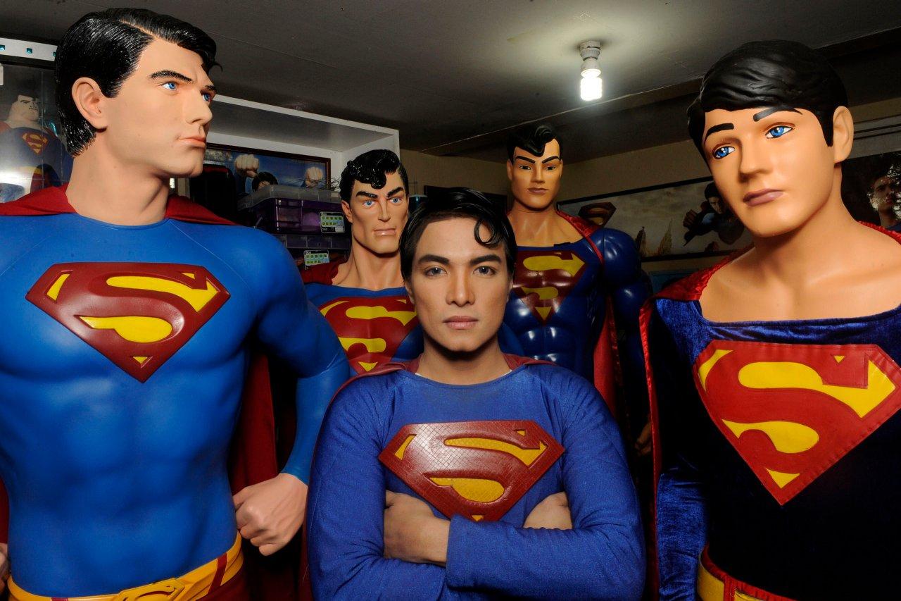 5 Pria ini lakukan operasi plastik demi mirip tokoh idola