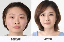 Percayakah kamu 15 foto ini semua hasil operasi plastik?