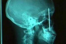 10 Benda yang ditemukan dalam tubuh manusia, bikin merinding ya?