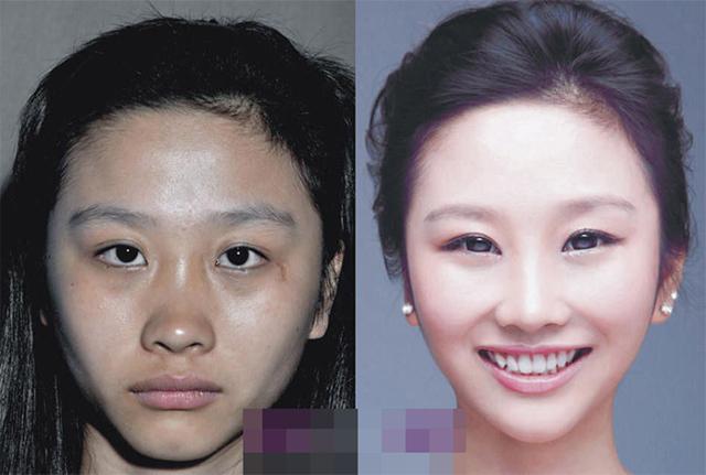 18 Perempuan China ini operasi plastik, bikin pangling!