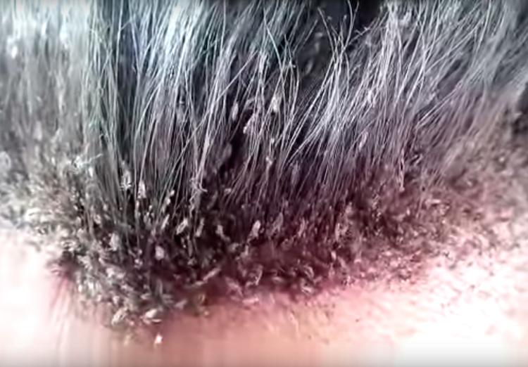 Ngeri! Ribuan kutu rambut hidup di kepala pria ini
