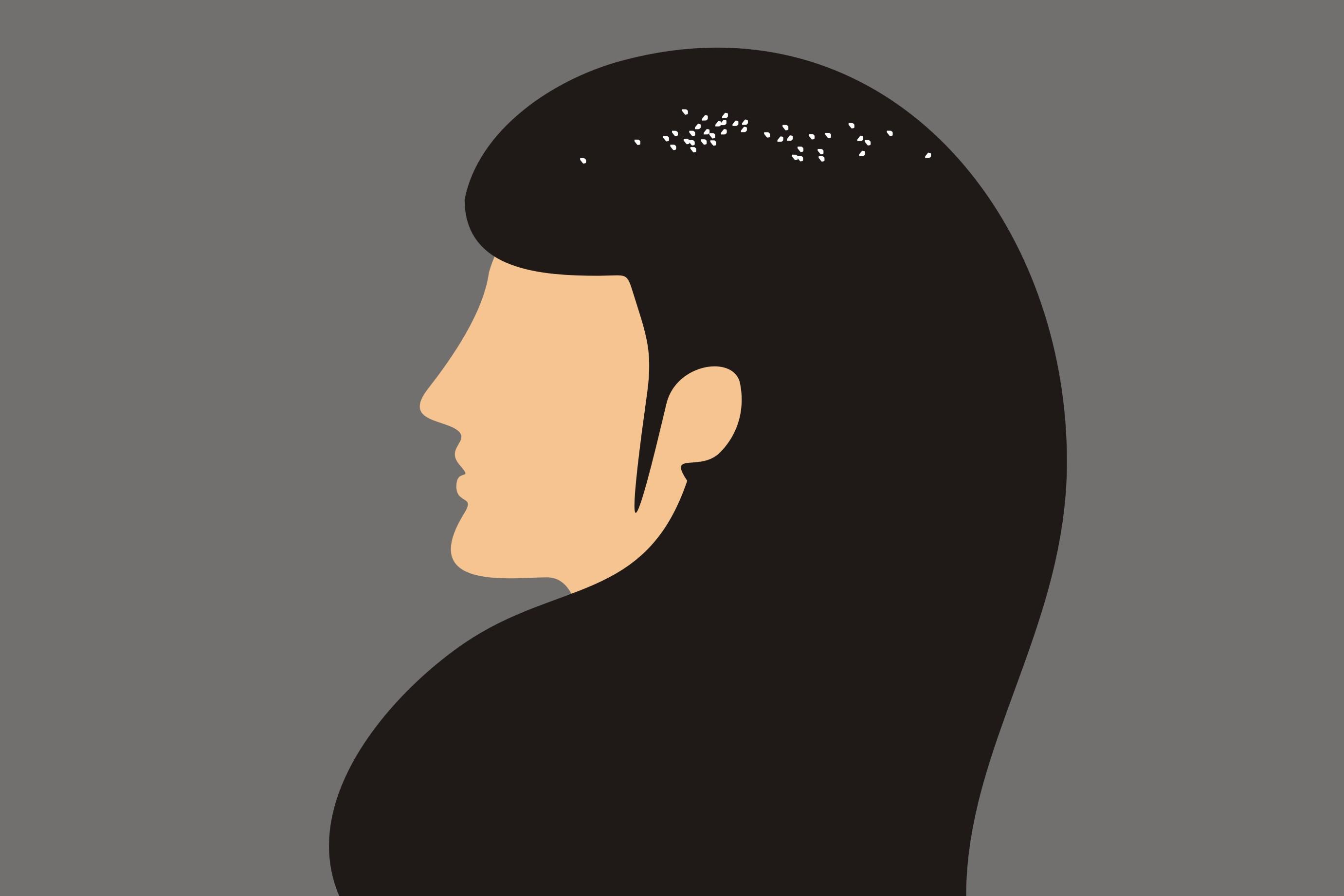 Ketombe suka nempel di rambut? Atasi saja pakai campuran minyak zaitun
