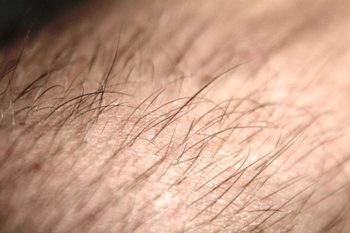 Inikah maksud kesehatan yang ditunjukkan rambut atau bulu tubuh kamu?